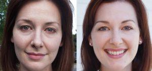 Organic Collagen Before and After